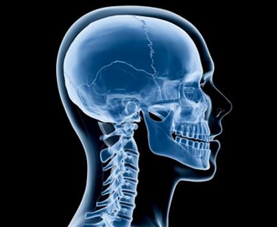 procedimentos-neurocirurgia-cranio-2